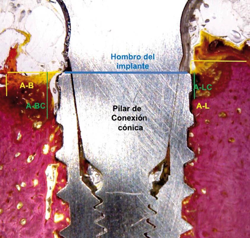 Nuevo diseño del implante para evitar la reabsorción ósea crestal y aumentar el contacto implante hueso