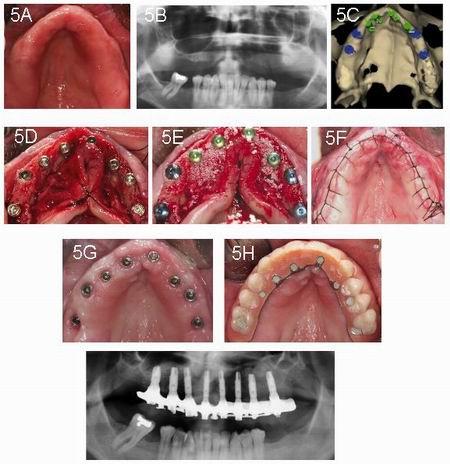 Tratamiento del maxilar superior atrófico mediante implantes en ...