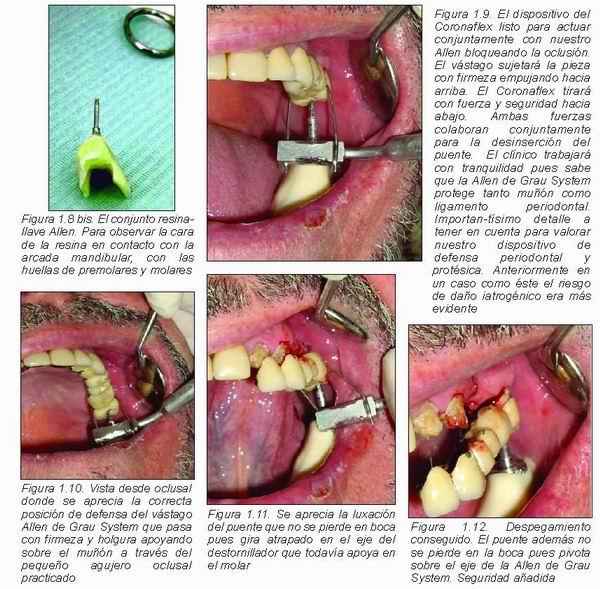 Propuesta de método de defensa periodontal y protésica para ...