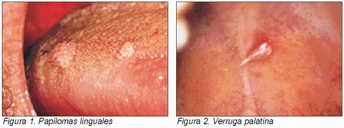 Condiloma verruga genital fotos 80
